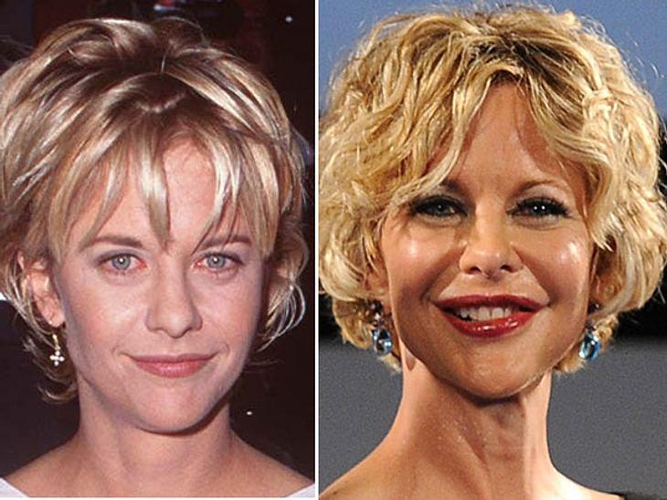 Dank Botox ist Meg Ryan kaum mehr zu erkennen