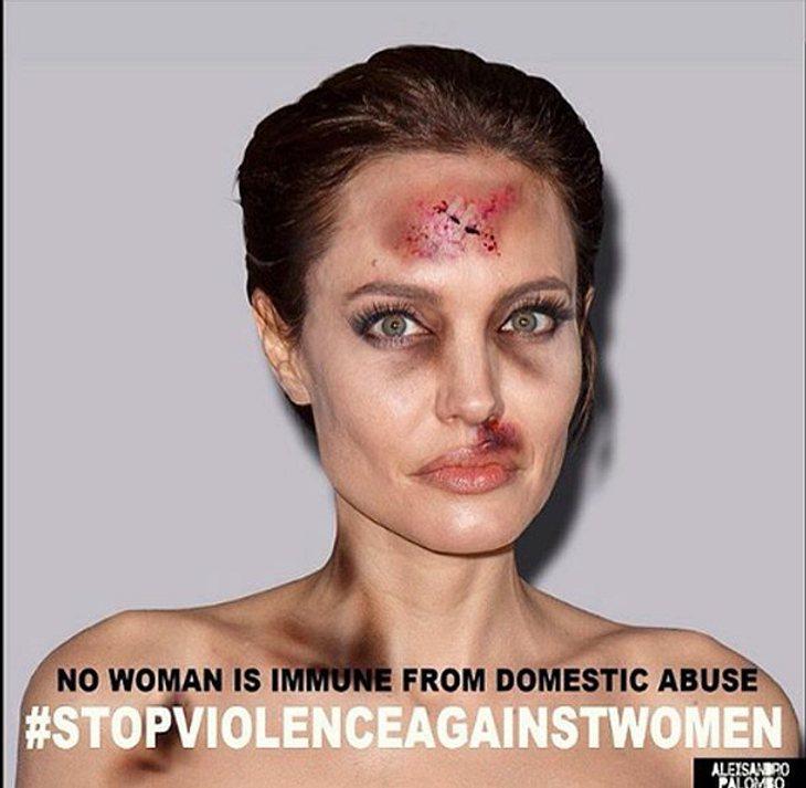 Angelina Jolie in besorgniserregendem Zustand