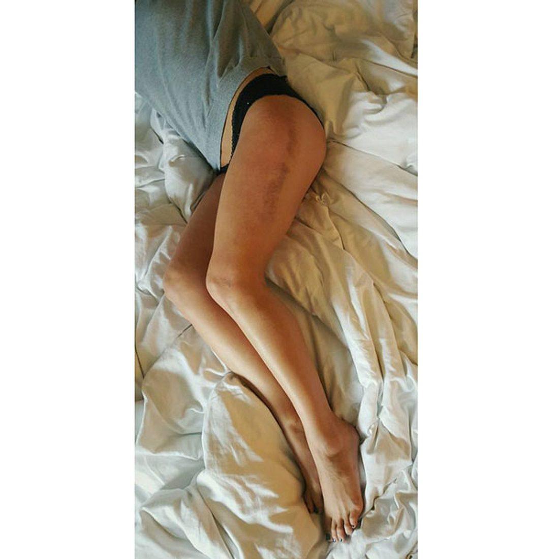 Annica Hansen zeigt ihre blauen Flecken