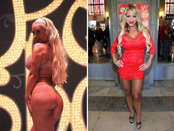 Annina Ucatis hat jetzt Po-Implantate