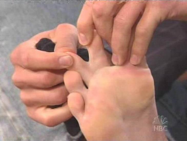 ... zwei Zehen seines rechten Fußes sind zusammengewachsen, wie er hier in einer Talk-Show zeigt.