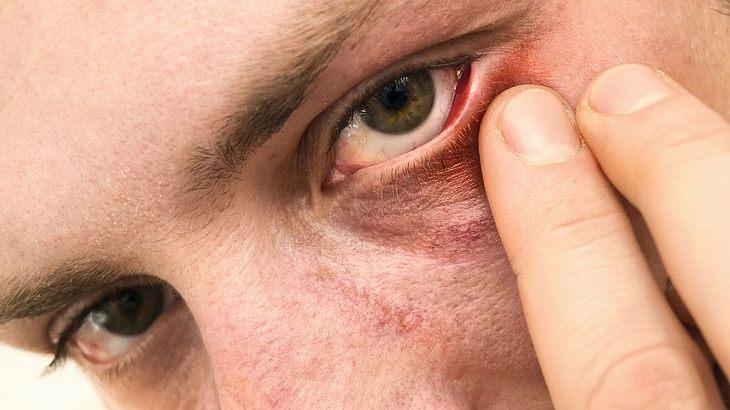 Mann hat 15-Zentimeter-Wurm im Auge