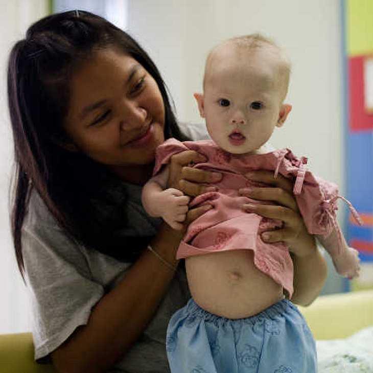 Baby Gammy: Leibliche Eltern gefunden?