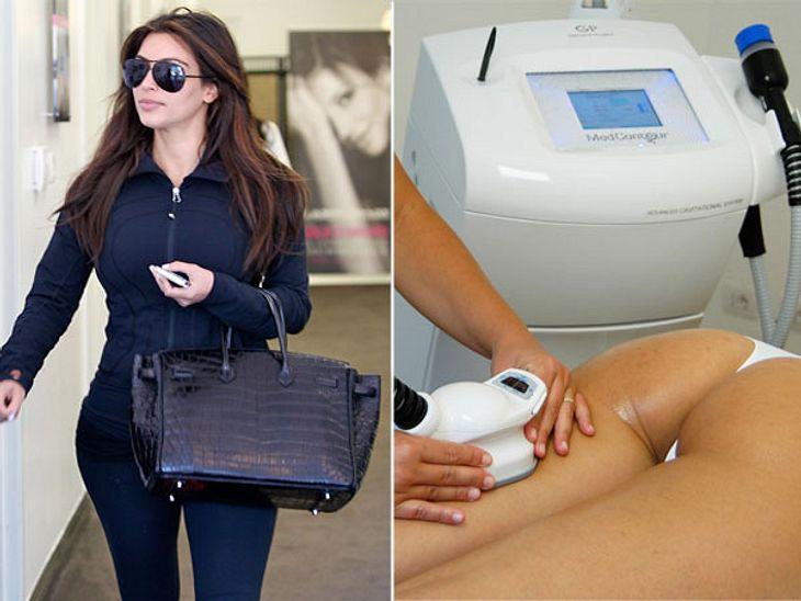 Die Beauty-Behandlungen der StarsULTRASCHALLKim Kardashian (31), mit ihren sehr üppigen Hüften schwört auf diese Beauty-Behandlung.So geht's:Der Fatburner für Faulpelze! Die Behandlung mit dem Ultraschallgerät ist völlig schmerzfrei, man sp