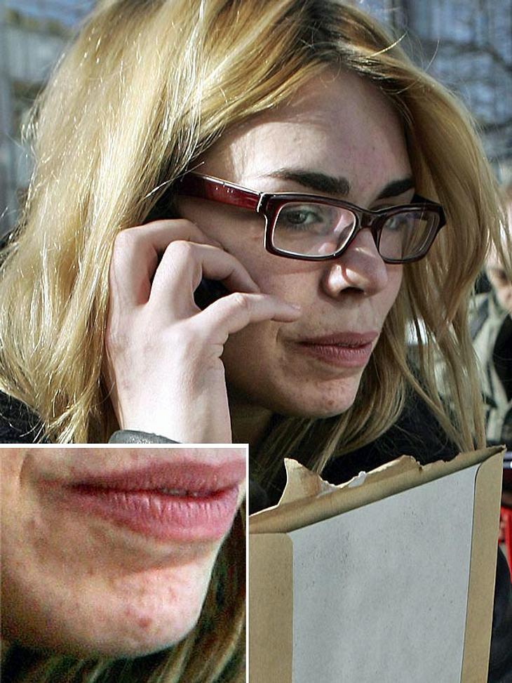 Man könnte denken, Billie Piper steckt mitten in der Pubertät. Die Pickel sprießen nur so bei der 27-jährigen Engländerin.