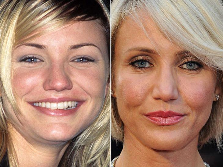 Stars nach der Nasen-OPMit den Jahren ist auch die Nase von Cameron Diaz schmaler geworden. Dabei hatte sie früher noch ein Fünkchen mehr Charme.