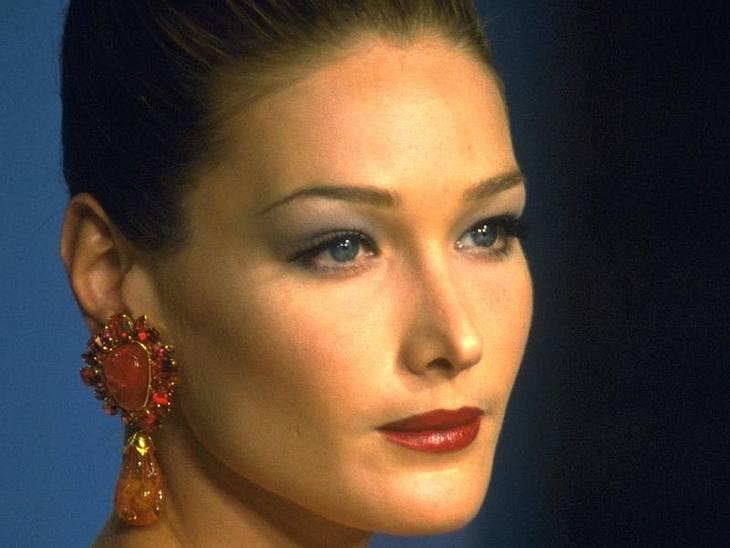 Da bewegt sich nichts mehr: Hollywoods Botox-Gesichter und Wurst-Lippen