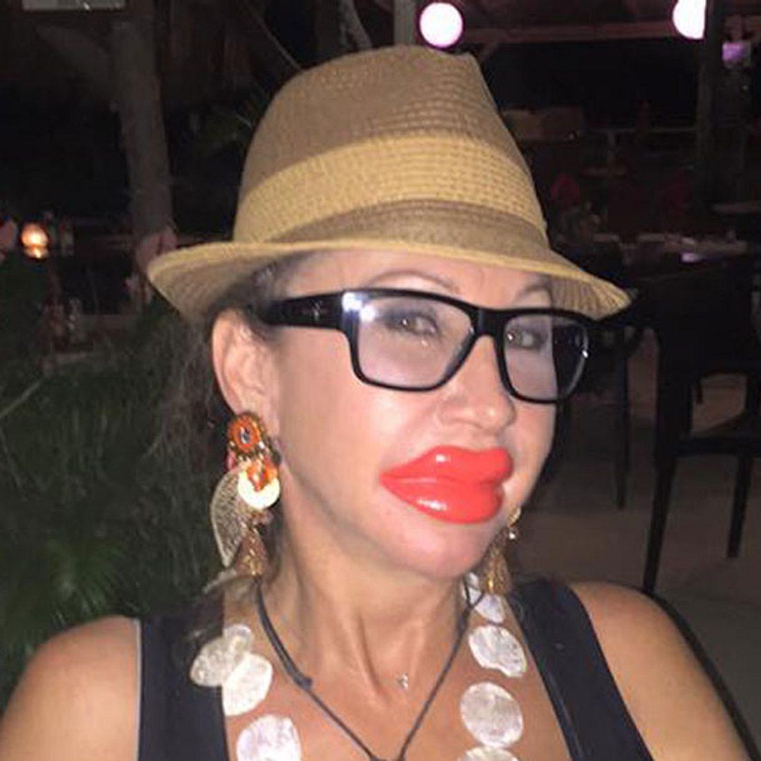 Carmen Geiss hat jetzt Kardashian-Lippen!