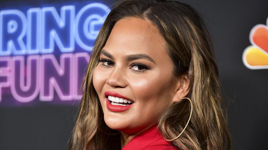 Chrissy Teigen: Mit Botox gegen Achselschwei0