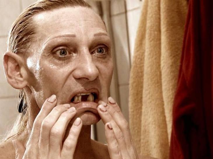 Extrem schön: Christins Zähne müssen erneuert werdenBesonders schlimm findet die Transsexuelle ihre Zähne, von denen einige fehlen und andere komplett marode sind.