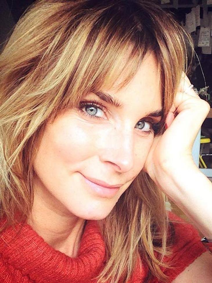 Claudelle Deckert hatte eine verpatzte Botox-Behandlung