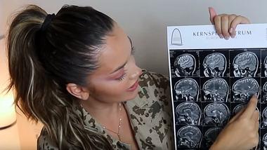 Ex-GNTM-Teilnehmerin hat Zyste im Gehirn