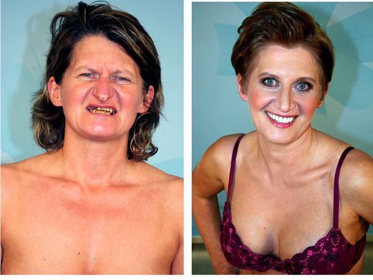 Extrem schön!Ein extremer Unterschied: Natalia vor und nach unzähligen Behandlungen.