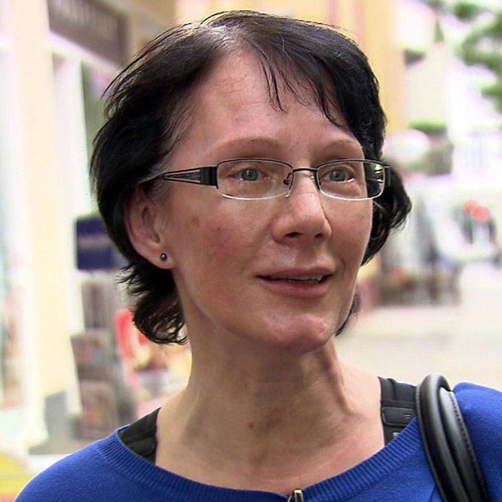 """""""Extrem schön"""": Inge leidet unter ihrer Nase"""