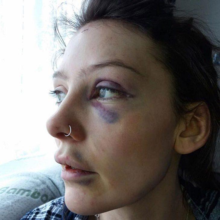 Mann verprügelt seine Freundin - der Grund macht fassungslos!