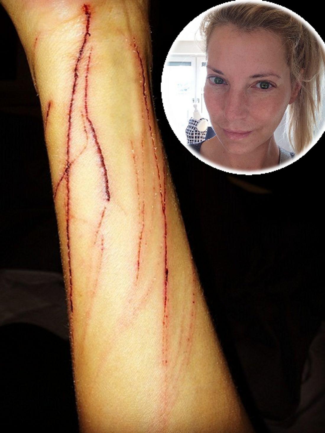 Giulia Siegel: Was ist bloß mit ihrem Arm passiert?   InTouch