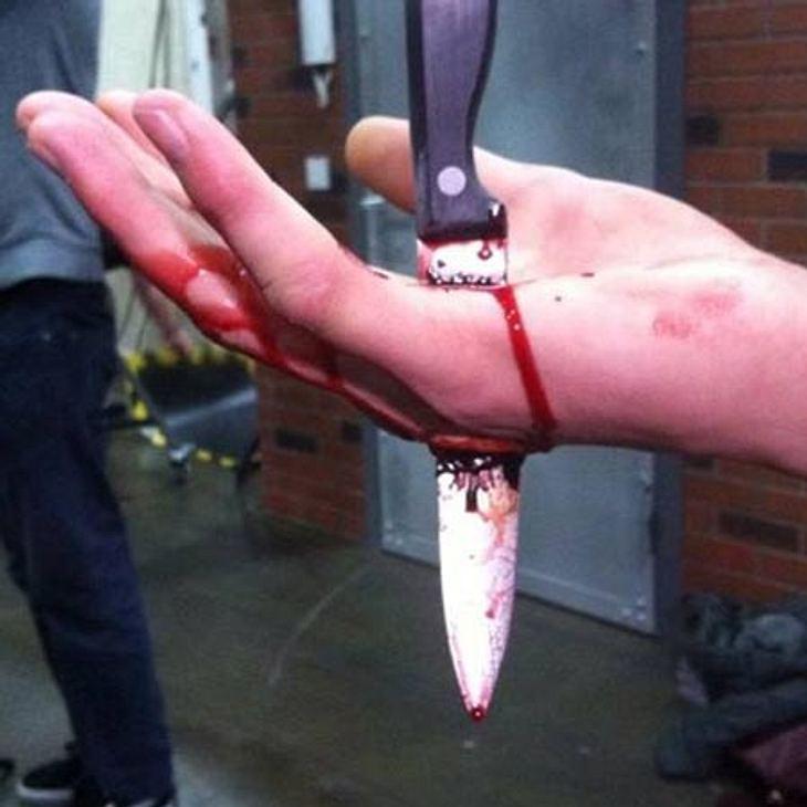 Blutiger Messer-Unfall bei GZSZ