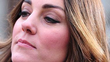 Herzogin Kate zeigt ihren grauen Haaransatz - Foto: GettyImages