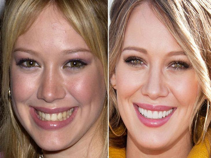 Stars nach der Nasen-OPMan muss schon genauer hinsehen, damit man erkennen kann, dass die Nase von Hilary Duff heute mehr Profil hat.