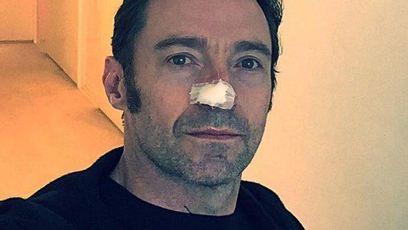 Hugh Jackman: Der Krebs ist zurück! - Foto: Facebook/ Hugh Jackman