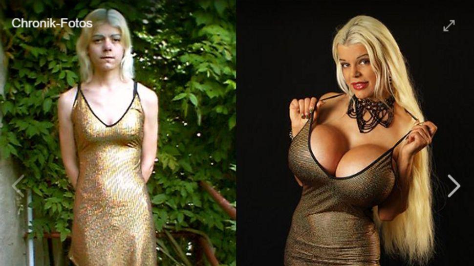 So sah die Frau mit den größten Brüsten Europas früher aus!