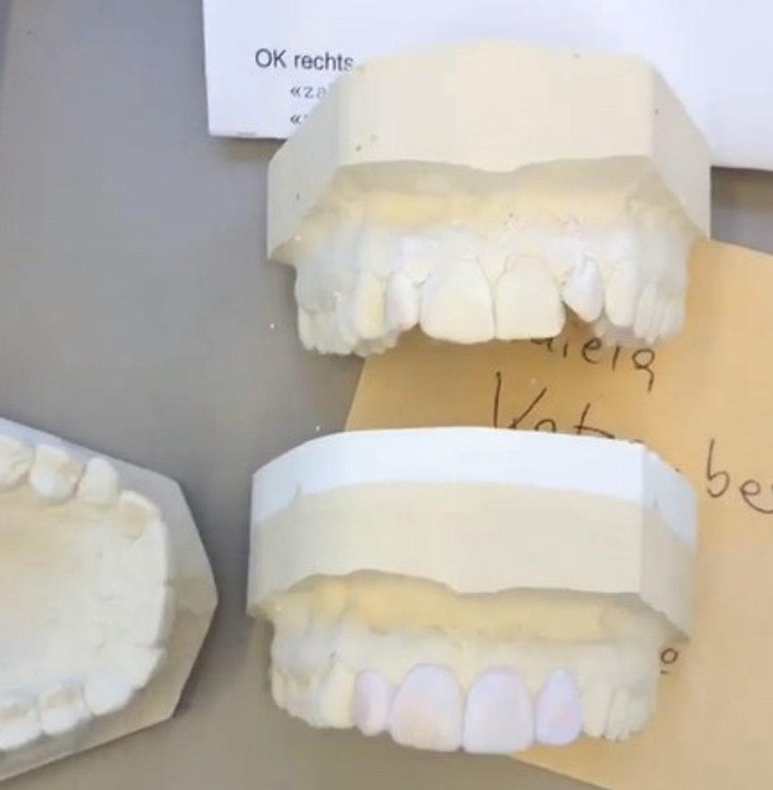 Daniela Katzenbergers Zahnabdruck