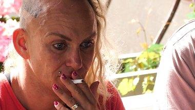 Schock-Bilder von Beauty-Eingriff aufgetaucht!