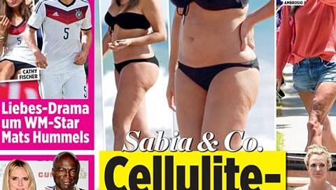 Cellulite-Frust bei Sabia & Co.