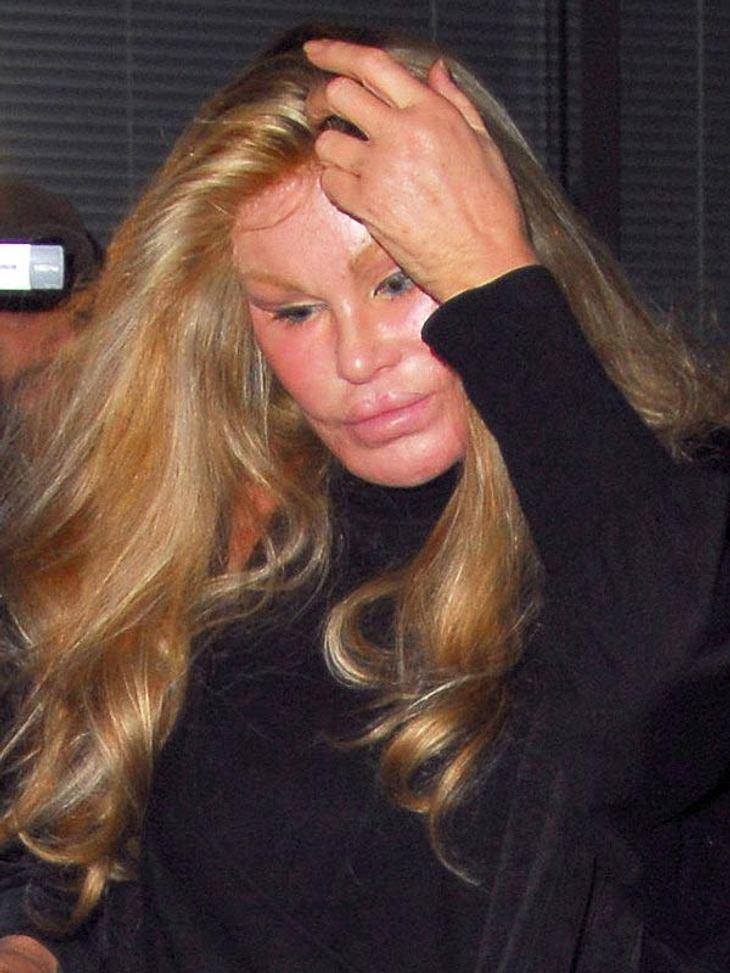 undefined Schönheitsoperationen bei den Stars: Die Beauty-OP-Opfer