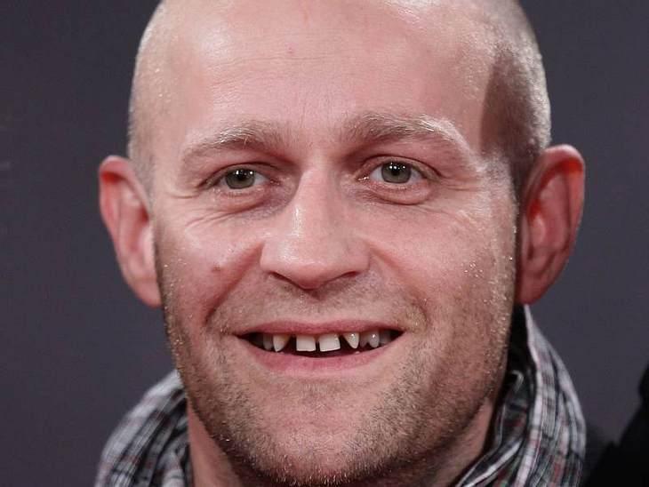 Mut zur Zahnlücke!Jürgen Vogel fehlen einige Zähne, seine Zahnlücken sind deshalb immens. Heute steht er dazu, seine Zähne sind sein Markenzeichen.