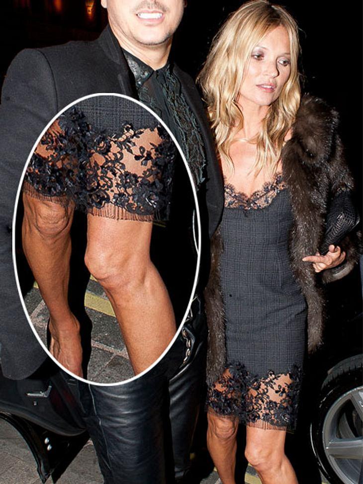 Kate Moss zeigt ihre faltigen Knie