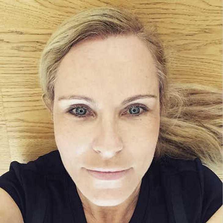 Katja Burkard: Botox-Vorwürfe nach Ungeschminkt-Selfie!