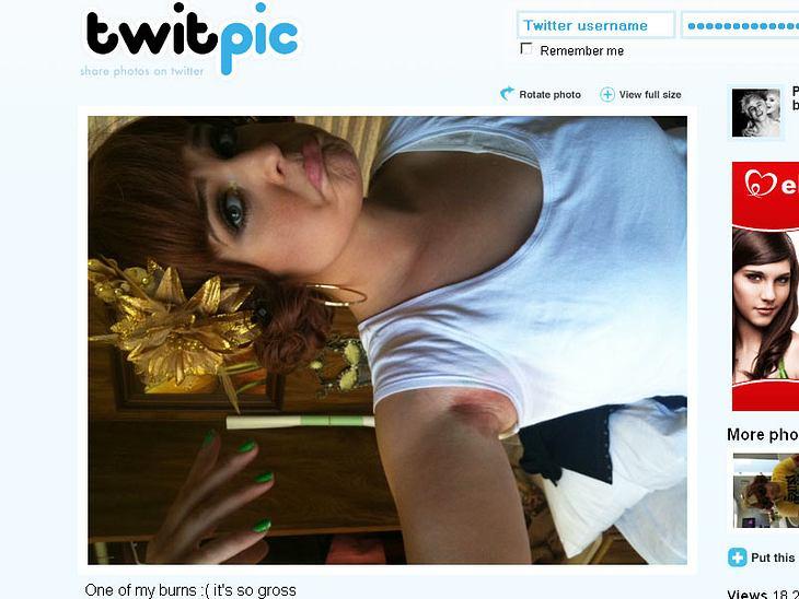 """Schmerz lass nach! Kelly Osbourne zeigt eine ihrer Verbrennungen auf """"Twitter"""""""