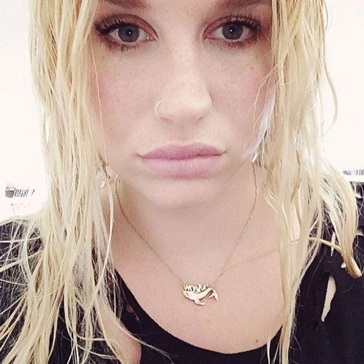 Kesha bekommt prominente Unterstützung
