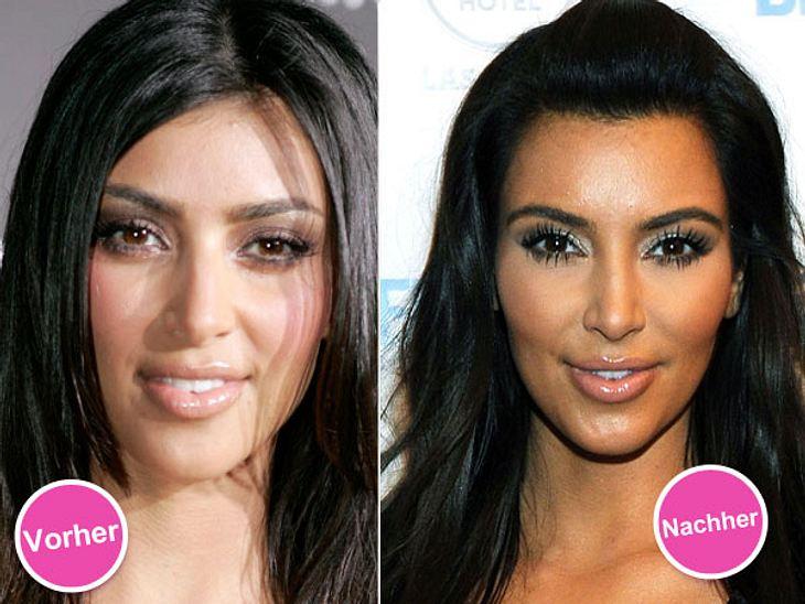 Die Beauty-Sünden der StarsKim Kardashian (31) macht keinen Hehl daraus, dass sie grundsätzlich nichts gegen Schönheitsoperationen einzuwenden hat - obwohl sie sich selbst angeblich noch niiiiie unters Messer gelegt hat. Nur ein paar Botox-
