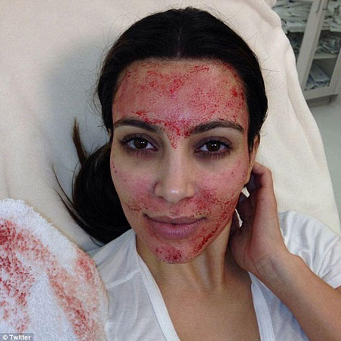 Kim Kardashian twitterte dieses Bild von sich.