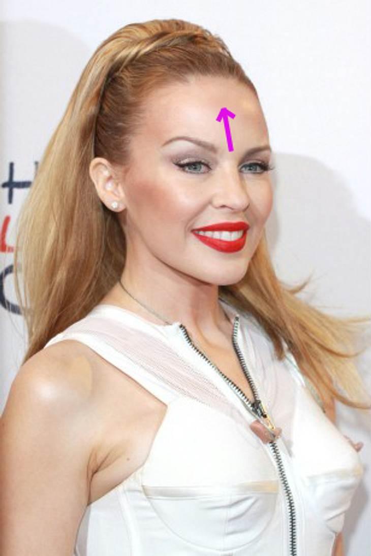 Die Luxus-Beauty-Behandlungen der StarsBotoxFast schon ein Klassiker unter den Schönheitsbehandlungen ist Botox. Die Stars verwenden das Nervengift jedoch in letzter Zeit wohldosiert, um starre Gesichter zu vermeiden.Kylie Minogue gehört zu