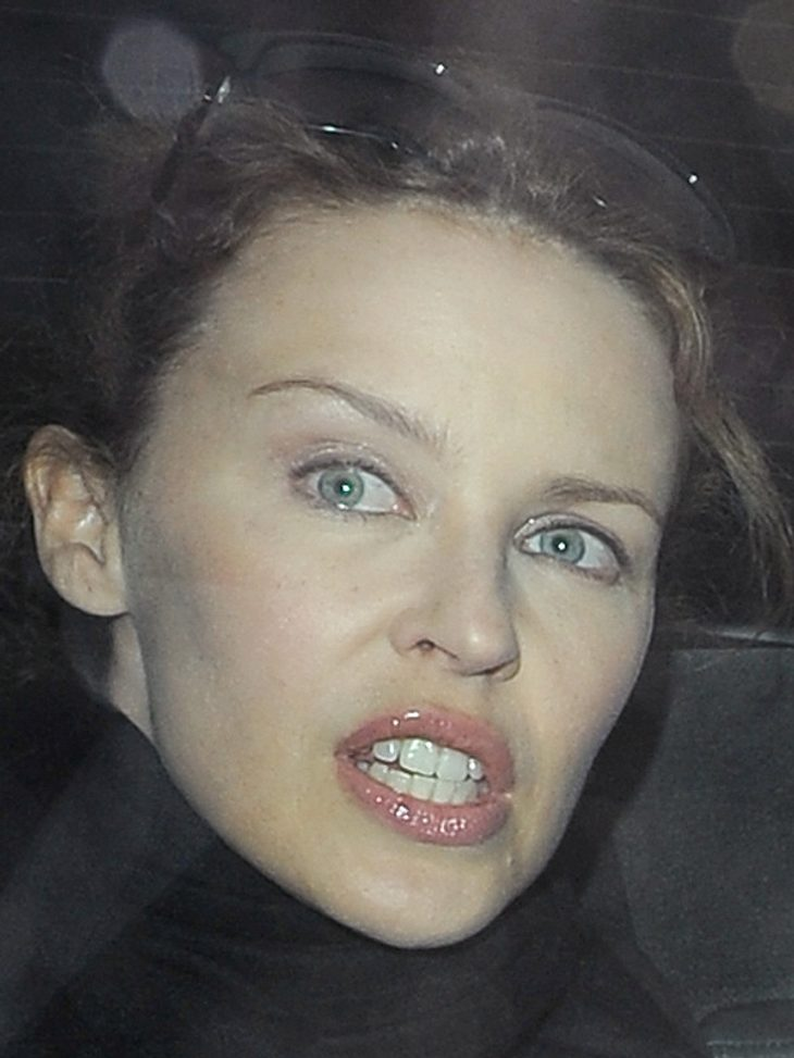 Schönheitsoperationen bei den Stars: Die Beauty-OP-Opfer