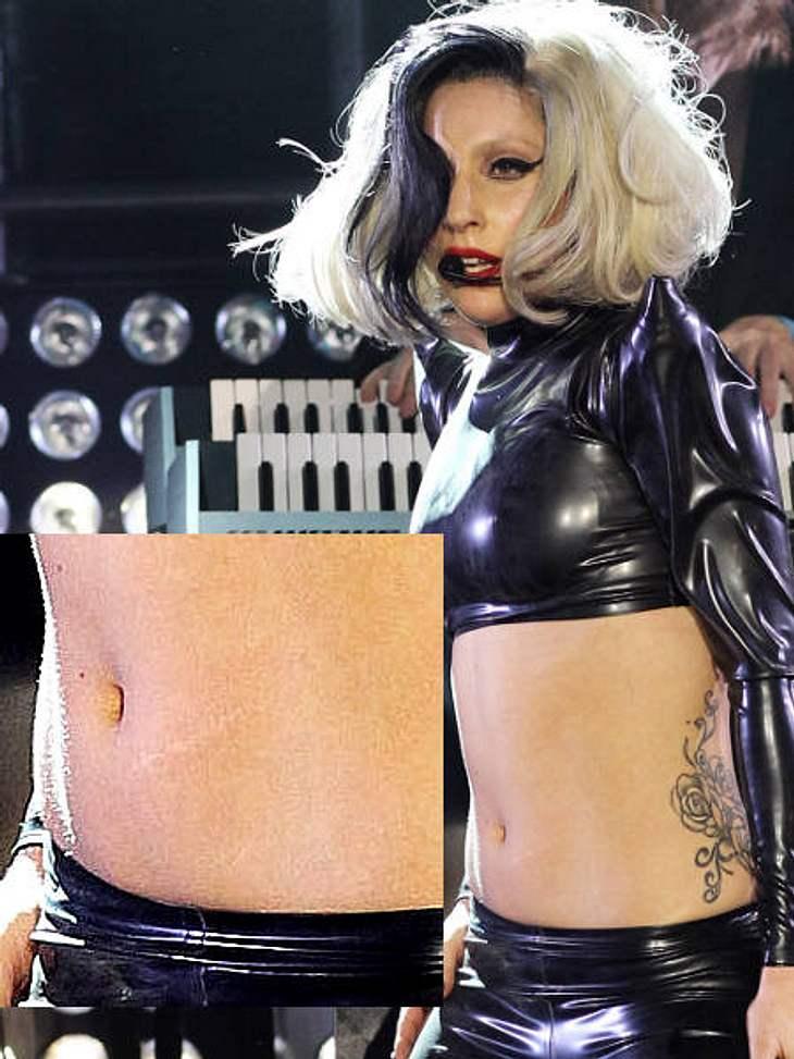 Kleine Schönheitsfehler: Die Narben der StarsLady Gaga hat eine sehr auffällige Narbe am Bauch. Die ist ungefähr acht Zentimeter lang und hat ihren Ursprung in Gagas Kindheit. Als sie sieben Jahre alt war, wurde ihr dort ein Muttermahl entf