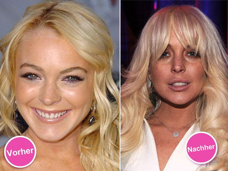 Die Beauty-Sünden der StarsUnglaublich, wie jung und frisch Lindsay Lohan (26) noch vor bei paar Jahren aussah!Nach einer ganzen Reihe von Beauty-Ops ist von Lindsays natürlichem Look nicht mehr viel übrig geblieben. Die Schauspielerin ließ