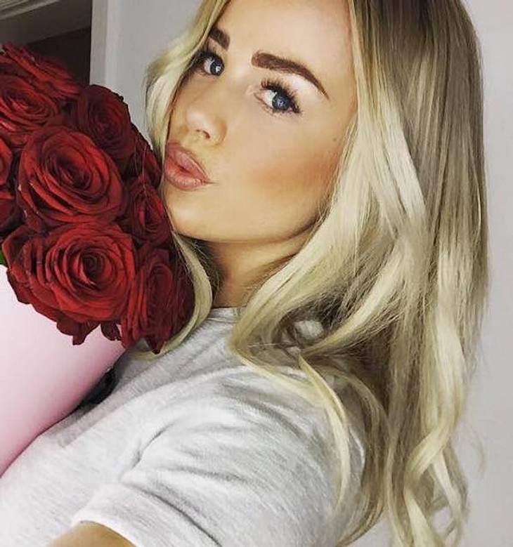 Lippen unterspritzt: Liz Kaeber gesteht Gang zum Beauty-Doc
