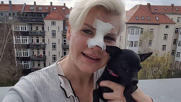 Melanie Müller steht zu ihrer Nasen-OP - Foto: Facebook/ Melanie Müller