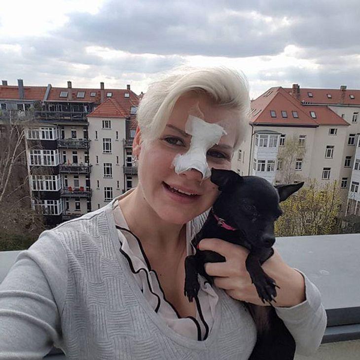 Melanie Müller steht zu ihrer Nasen-OP