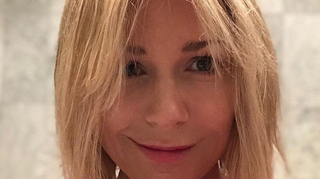 Michelle wehrt sich gegen den Botox-Shitstorm