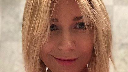 Michelle wehrt sich gegen den Botox-Shitstorm - Foto: Instagram/@michelle_aktuell