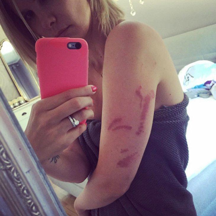 Monica Ivancan wurde von einer Feuerqualle attackiert
