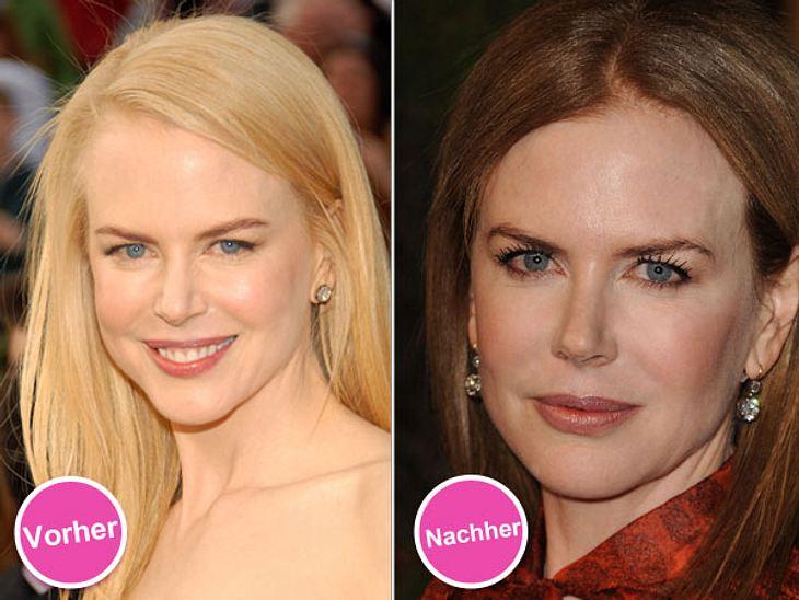Die Beauty-Sünden der StarsIm Laufe der Jahre ist das Gesicht von Nicole Kidman (45) immer maskenhafter geworden. Der Grund: Die Schauspielerin hat es mit den Botoxinjektionen wohl ein bisschen übertrieben. Zum Glück ist ihr das inzwischen