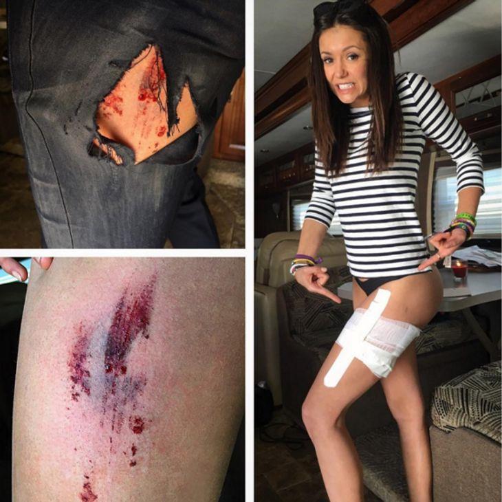 Nina Dobrev hat sich verletzt