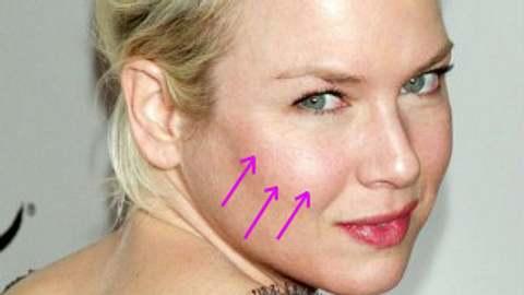 Schön ohne OP: Luxus-Beauty-Behandlungen der Stars - Bild 1 - Foto: WENN