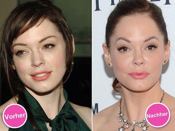 """Die Beauty-Sünden der StarsDie Verwandlung von Rose MacGowan (38) ist echt heftig! Das Gesicht der """"Charmed""""-Darstellerin kaum wiederzuerkennen. """"Ihre Gesichtsform hat sich komplett verändert"""", erklärt Dr. Schweiger. Er"""